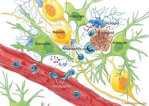 Роль иммунной системы в развитии резистентной к лекарствам эпилепсии